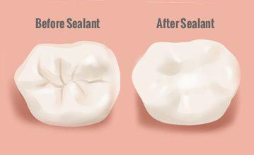 Dental Sealant Program Canceled for 2021